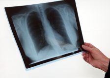 Lutte contre la tuberculose: une coordination très attendue!